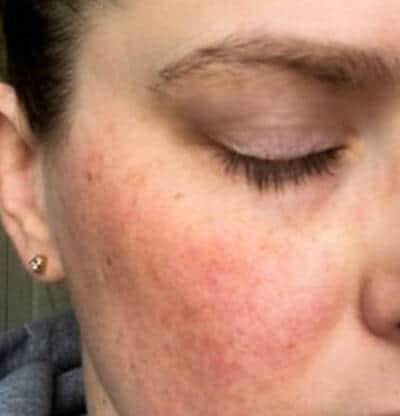 Rosacea bumps